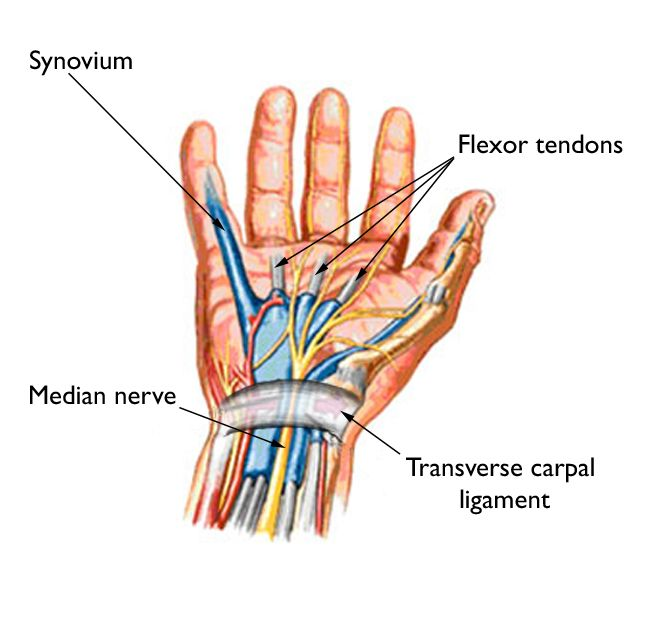 slash resistant gloves hands nerves tendons